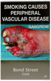 Example of plain packaging with graphic image of smoking caused periperal vascular disease